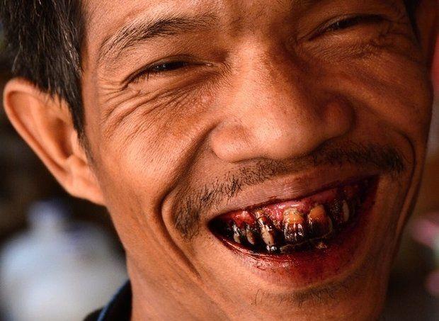 Betelové zuby - Papua Nová Guinea